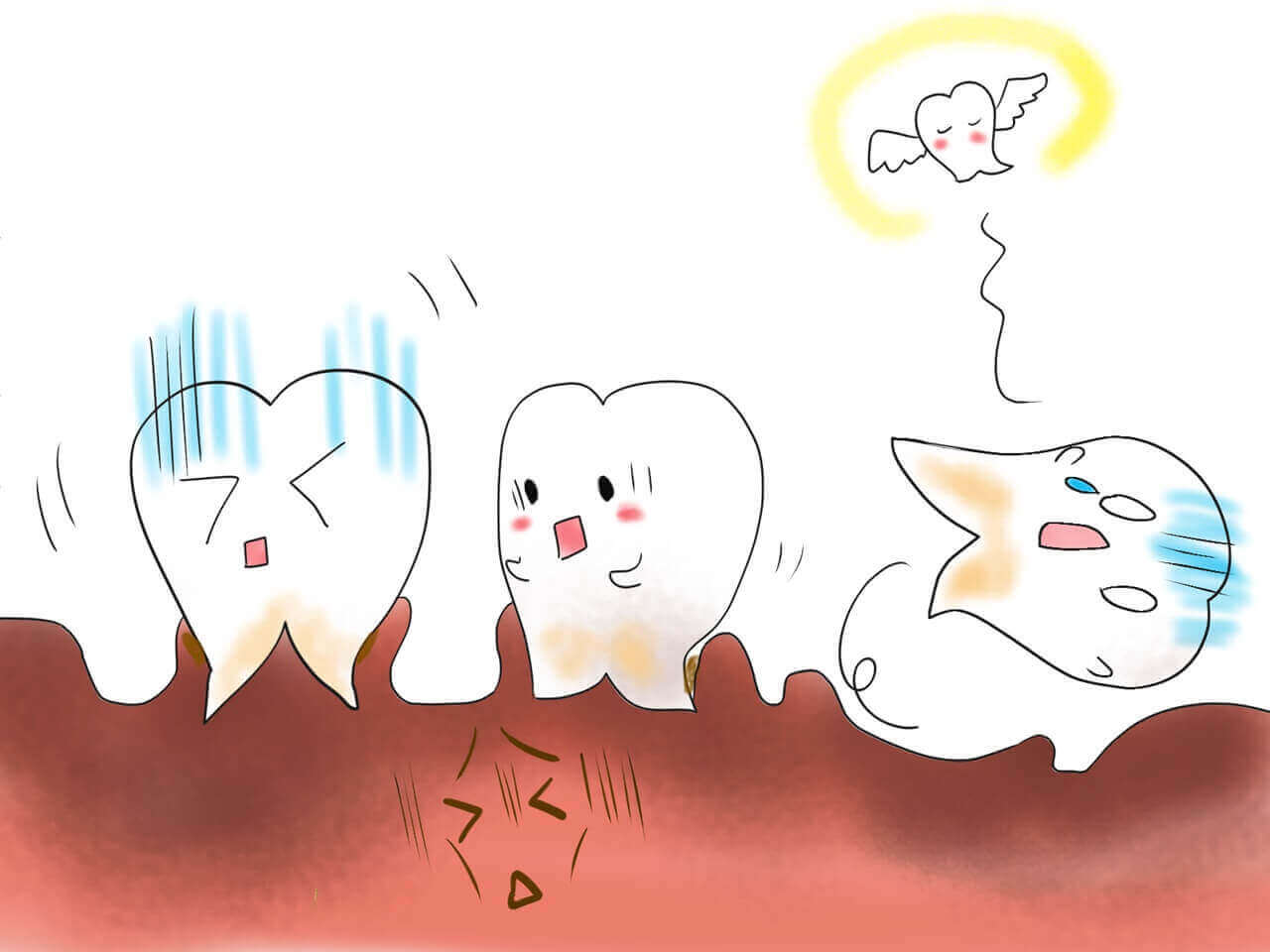 奥の歯茎の腫れ