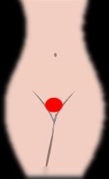 デリケートゾーン形 丸型