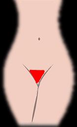 デリケートゾーン 逆三角形