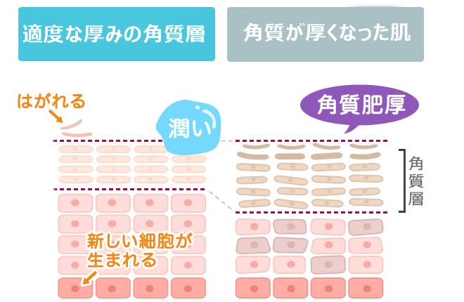 角質層の肥大化